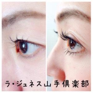 瞼の老化 瞼のたるみ