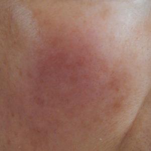 リセラ肌 敏感肌 50代