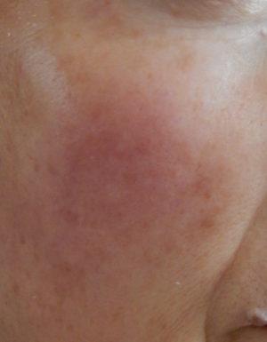 敏感肌 50代 症例