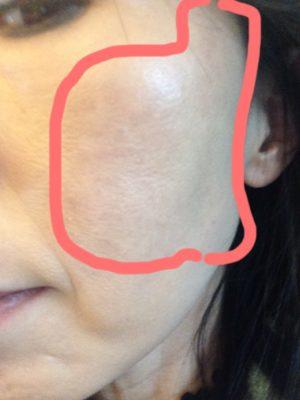 肝斑、40代の肌