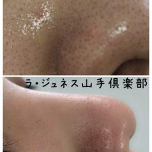 毛穴・イチゴ鼻