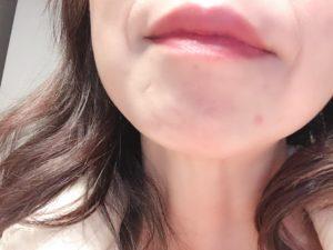 口周囲のニキビ