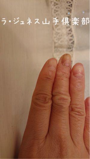 老化は爪と髪の毛に現れます
