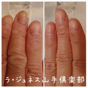 爪の悩み 反り爪