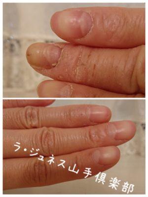 爪と美容の関係 ラ・ジュネス山手倶楽部
