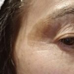老人性色素斑症例