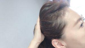 アホ毛、切れ毛、老化現象